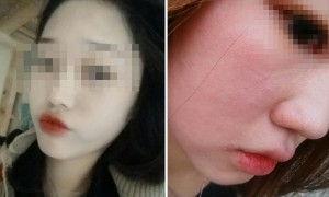 아모레 '이니스프리' 팩 쓰고 얼굴 뒤집어져 면접 망친 여성