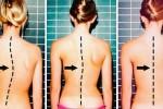 일주일 만에 휜 허리 바로 잡는 7가지 운동법
