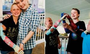 팔 없는 장애 아동에게 '로봇 팔' 선물한 대학생 봉사단체