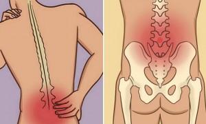 하루 10분만 투자하면 '허리통증' 줄여주는 운동법 (영상)