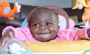 10개월 된 아기 등에 달린 '두 다리' 완벽하게 분리해 낸 의사