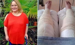 면도기로 비키니 라인 '제모'하다 목숨 잃을 뻔한 여성